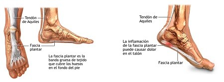 articles_fascitis-plantar-compex-2-240215 How to treat Plantar Fasciitis with COMPEX? Physiotherapy articles