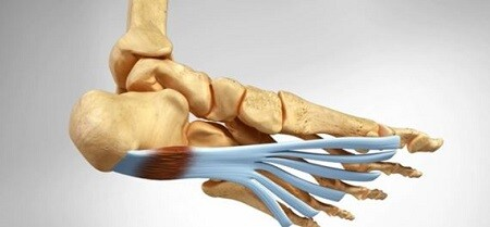 articles_fascitis-plantar-compex-3-240215 How to treat Plantar Fasciitis with COMPEX? Physiotherapy articles