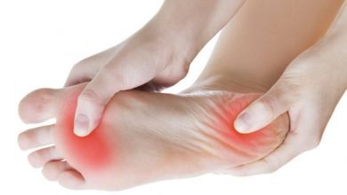"Photo of ""False"" Plantar Fasciitis"