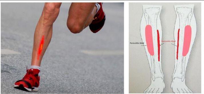 Périostite tibiale ou maladie du coureur