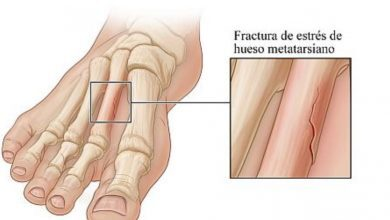 Photo of Causes and treatments of stress fractures