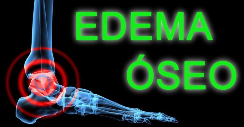 Causes and treatment of bone edema