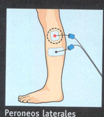 material_08_position-electrodes-compex-entorse-cheville Prévention de l'entorse de la cheville avec Compex, fonctionne proprioception Articles de formation
