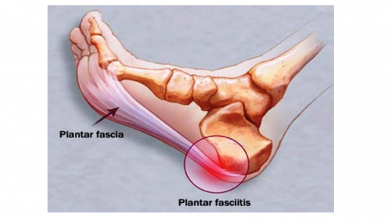 Photo of Be careful with plantar fasciitis, what can we do to prevent it?