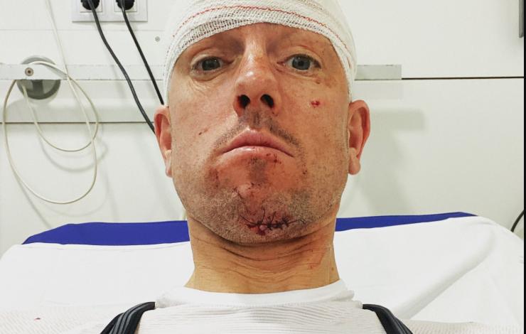 Frederick Van Lierde subit un accident