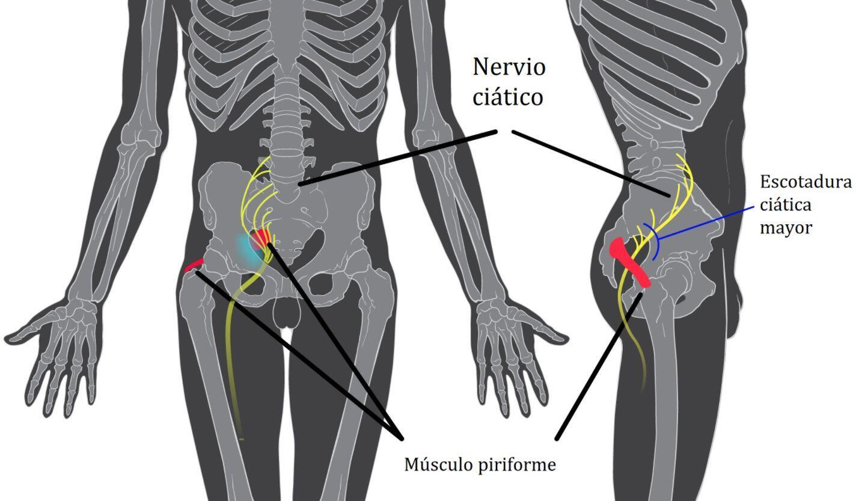 Piriformis_syndrome